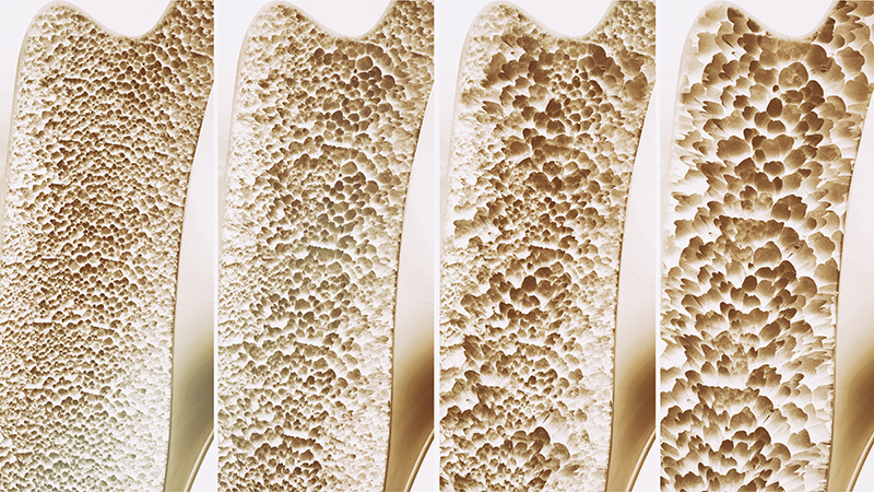Osteoporosis - 4 stages